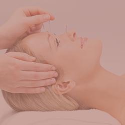 Akupunktur Haderslev, nåle langs ansigtet