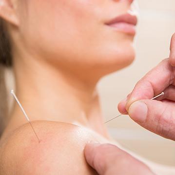 akupunktur i Haderslev, hovedpiner og migræner
