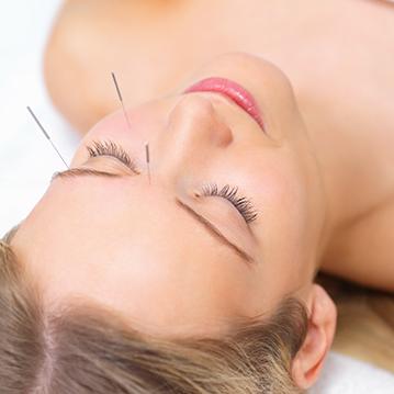 akupunktur Haderslev, stress